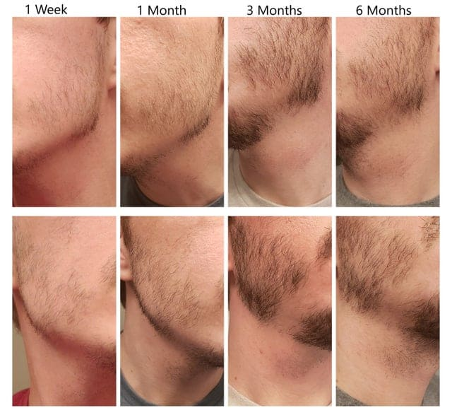 Beard growing longer on one side - Minoxidil