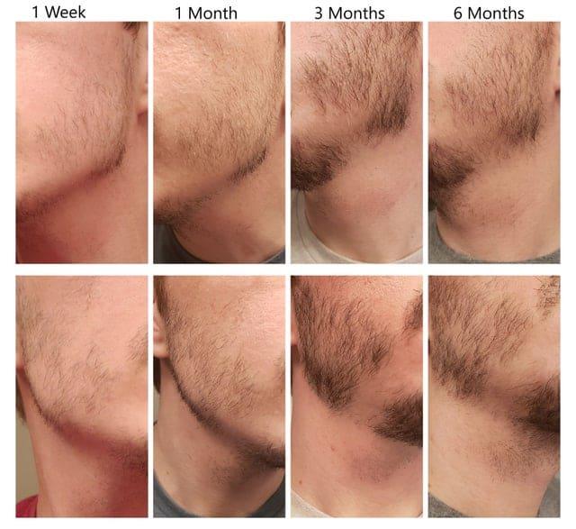 Beard growing longer on one side - Minoxidil