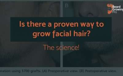 Is there a proven way to grow facial hair? [The studies you need to know about]
