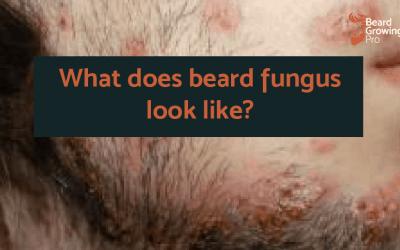 What does beard fungus look like?