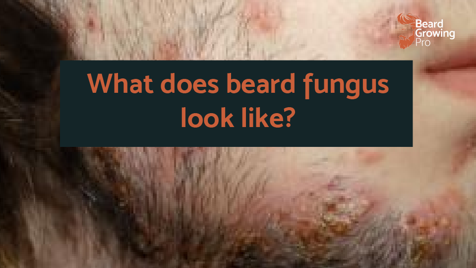 what does beard fungus looked like